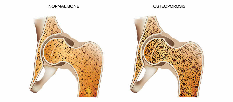 FAQs about osteoporosis